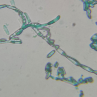 Brett Claussenii 800x Magnification (taken from plate)