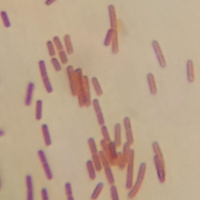 Lactobacillus (from Kimchi) Under 800X Magnification